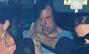 Ben Affleck újra elvonóra került, exfelesége szállította be