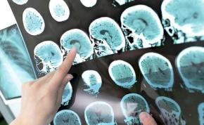 Egy színező anyag segítheti az agydaganat eltávolítását