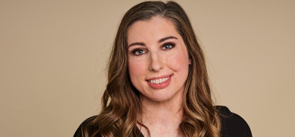 Avon új reklámarca egy égési sérült nő
