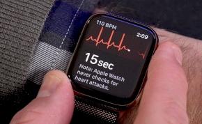 Már itthon is elindult az Apple Watch EKG-funkciója