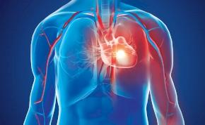 A beteg saját sejtjeiből készült tapasszal gyógyítanák a szívroham okozta károsodást