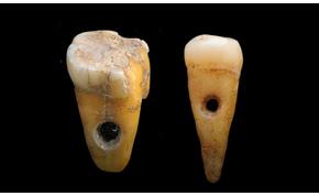 Ékszerként használt, 8500 éves emberi fogakat találtak