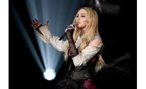 Tátva marad a szád Madonna új hajszínétől