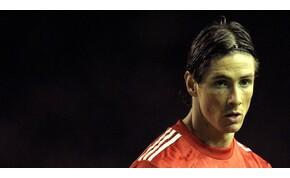 A Liverpool korábbi sztárja elképesztő változáson ment át