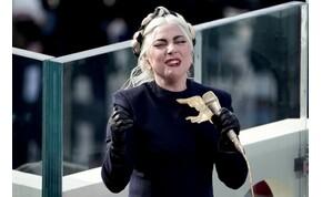 Elrabolták Lady Gaga kutyáit, 500 ezer dollárt fizetne értük az énekesnő
