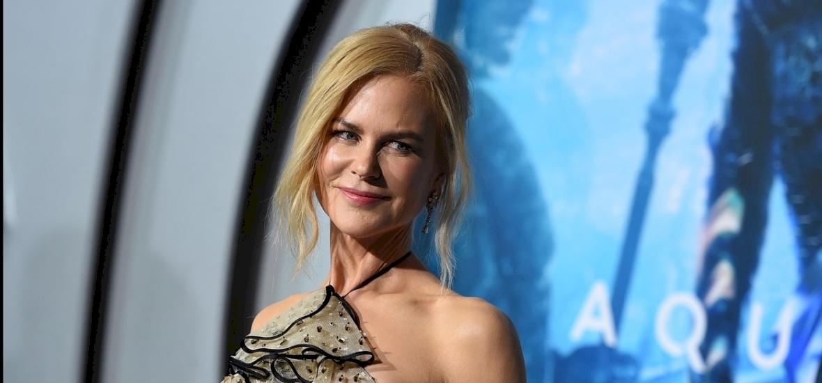 Mit művelt már magával Nicole Kidman?! Rá sem fogsz ismerni!